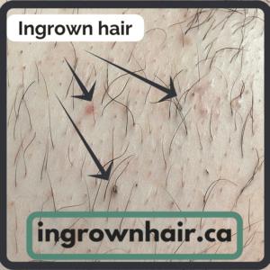 What does an ingrown hair look like?