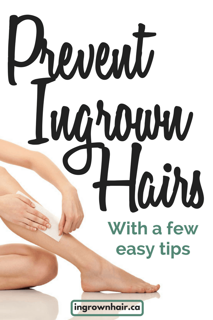 How to prevent ingrown hairs with a few easy tips