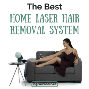 The best home laser removal system