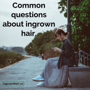 What are some of the most common questions about ingrown hair?