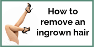 How to remove an ingrownhair