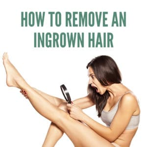 Learn how to remove an ingrown hair