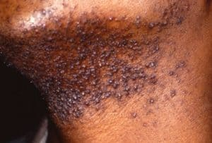 Picture of Pseudofolliculitis Barbae (PFB) from Madigan Army Medical Center Dermatology and SAUSHEC Dermatology teaching file
