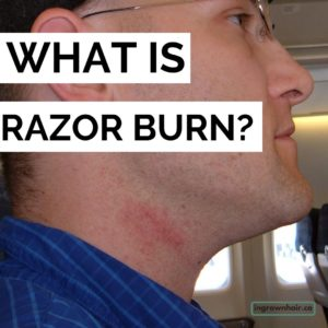 What is the medical term for razor burn?