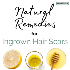 Natural remedies for ingrown hair scars