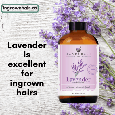 Lavender is excellent for ingrown hairs