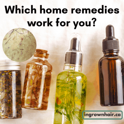 Which home remedy works best for your ingrown hairs