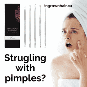 Check out the best selling pimple popper sets